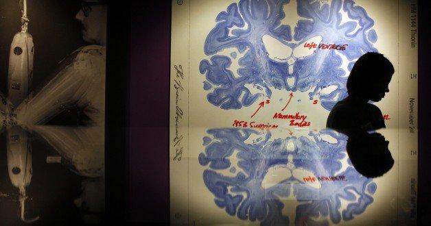 神经科学引发的哲学问题