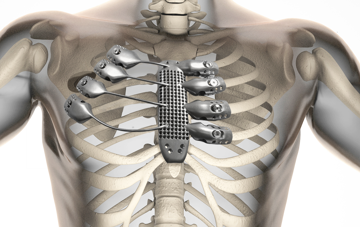 photo credit: Illustration of how the 3D printed sternum and ribcage should fit inside the patient's body. CSIRO